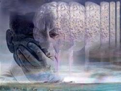 Alzheimer-