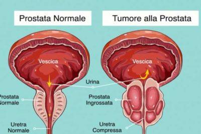 prostata con tumore