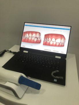 Impronta dentale digitale